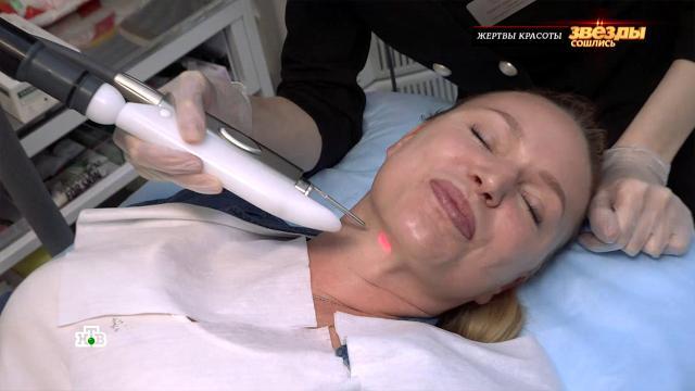 «Это мучительно»: Алла Довлатова рассказала об омолаживающих процедурах