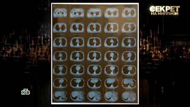 «Похожа на моллюска»: иллюзионист Сафронов показал свою раковую опухоль.интервью, онкологические заболевания, знаменитости, здоровье, мистика и оккультизм, иллюзионисты, эксклюзив, артисты, болезни, шоу-бизнес.НТВ.Ru: новости, видео, программы телеканала НТВ