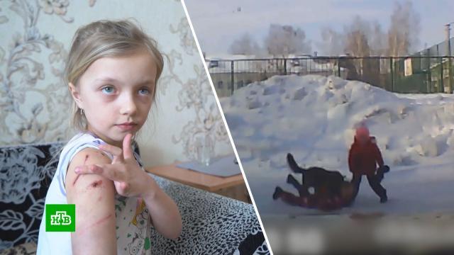 Стало известно о состоянии девочки, пострадавшей от собаки в Новосибирске.Новосибирск, дети и подростки, нападения, расследование, собаки.НТВ.Ru: новости, видео, программы телеканала НТВ