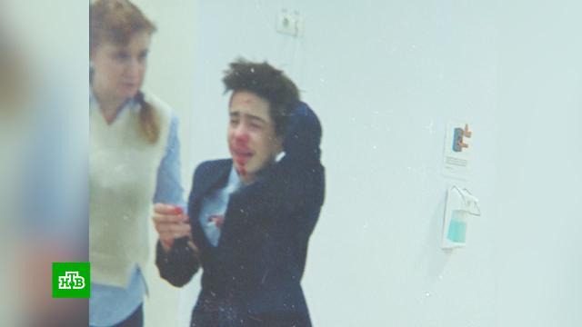 В московской школе ученик в ссоре сломал однокласснику нос.дети и подростки, драки и избиения, школы.НТВ.Ru: новости, видео, программы телеканала НТВ