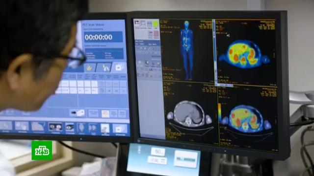 Секрет молодости: как ученые ищут лекарство против старения.США, Япония, здоровье, наука и открытия.НТВ.Ru: новости, видео, программы телеканала НТВ