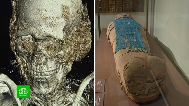 Медобследование помогло ученым узнать пол и биографию эрмитажной мумии.Египет, Санкт-Петербург, Эрмитаж, история, медицина.НТВ.Ru: новости, видео, программы телеканала НТВ