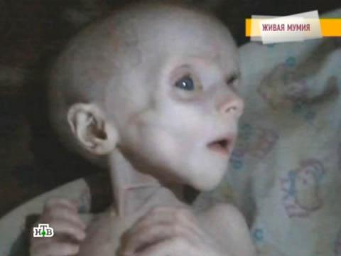 «Говорим ипоказываем»: «Живая мумия».болезнь, врачи, дети, жестокость, родители.НТВ.Ru: новости, видео, программы телеканала НТВ