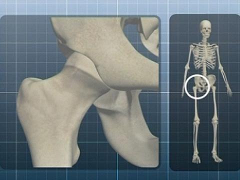 Выпуск от 10марта 2013года.Силикон, анатомия протеза, умная техника.НТВ.Ru: новости, видео, программы телеканала НТВ