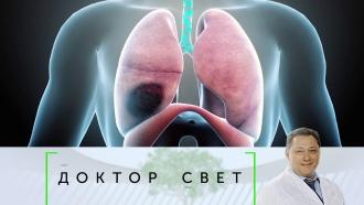 Выпуск от 11октября 2019 года.Как распознать рак легких на ранней стадии и простые способы бросить курить.НТВ.Ru: новости, видео, программы телеканала НТВ