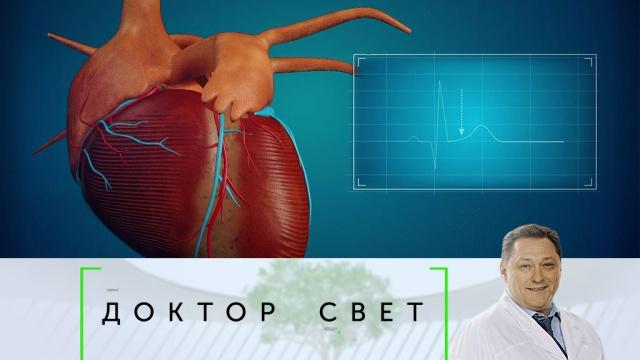 Выпуск от 1 ноября 2019года.Инфаркт: причины возникновения, лечение и профилактика.НТВ.Ru: новости, видео, программы телеканала НТВ