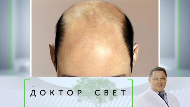 Выпуск от 29 ноября 2019 года.Почему люди лысеют икак проявляется психологическая защита.НТВ.Ru: новости, видео, программы телеканала НТВ