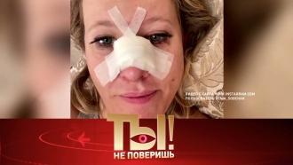 Выпуск от 28 июня 2020 года.Кто сломал нос Ксении Собчак ипочему разводятся Харламов иАсмус?НТВ.Ru: новости, видео, программы телеканала НТВ
