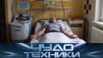 Новейшие методы лечения рака итест электронагревателей— впрограмме «Чудо техники» на НТВ