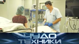 Как проходят операции по уменьшению желудка истоитли тратиться на дорогую видеокамеру? «Чудо техники»— 19июля на НТВ.НТВ.Ru: новости, видео, программы телеканала НТВ